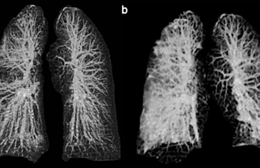 Así deja el COVID-19 los pulmones de los infectados.