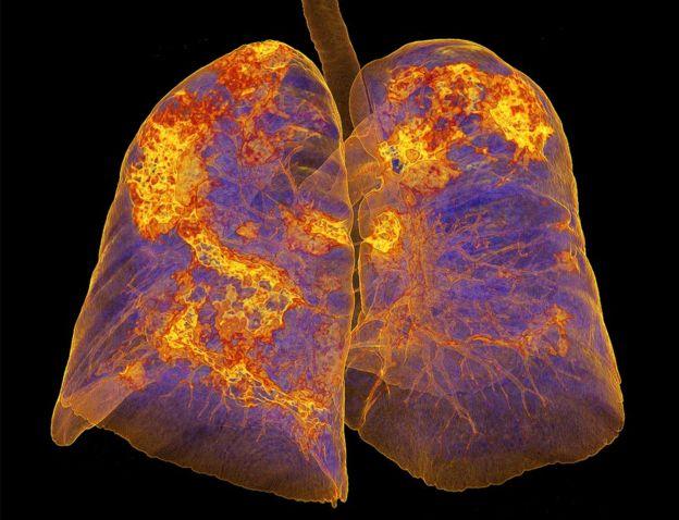 El covid-19 lesiona los pulmones a largo plazo en muchos pacientes recuperados