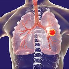 Hallan cura mejorada para la tuberculosis