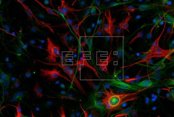 Descubren el gen que desencadena el cáncer cerebral de peor pronóstico